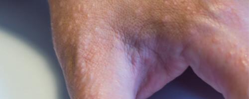 What 9 Common Skin Rashes Look Like - Verywell Health ...